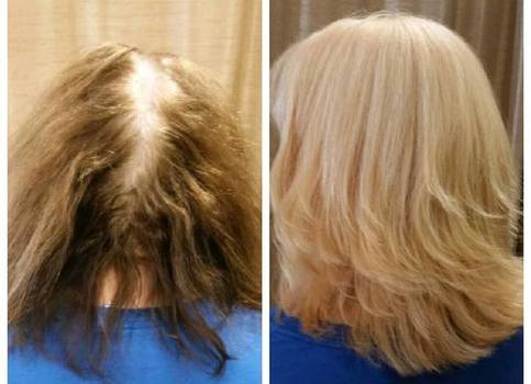 Weave extensions for thin hair
