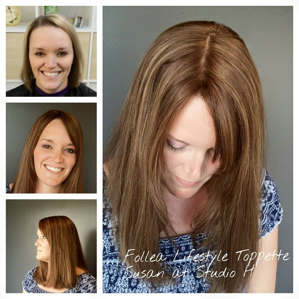 have thinning hair this is a great immediate option for a full